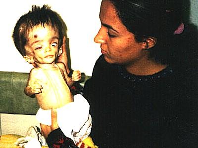 depleted-uranium-victim-epathram