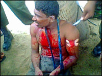 srilanka-warcrime-victim